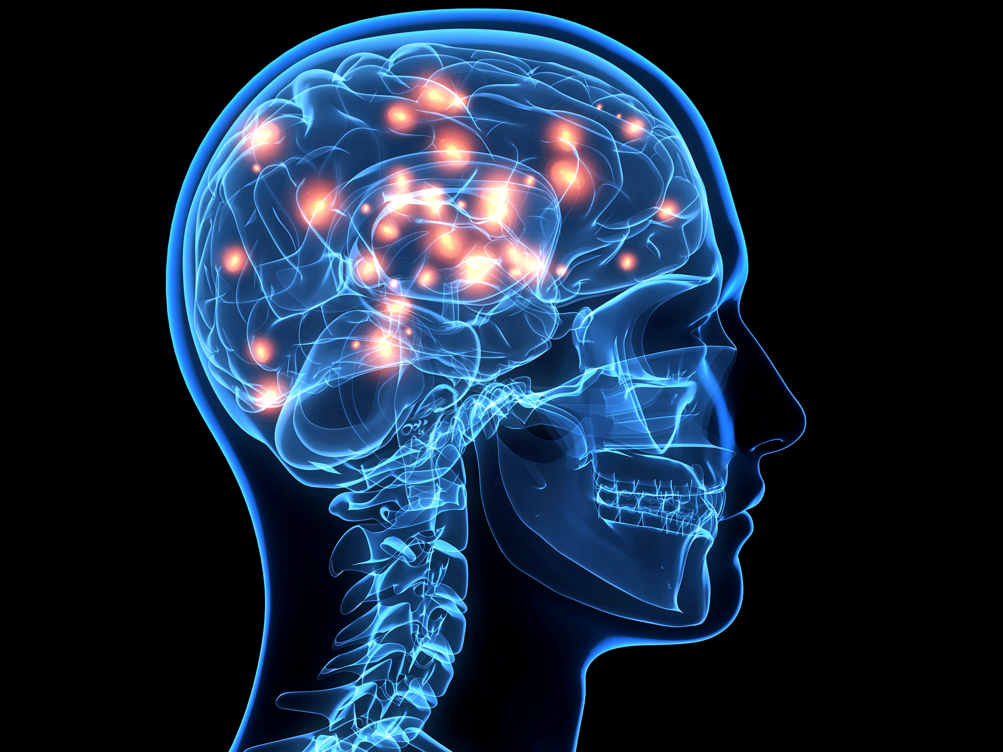traumatic brain injury myths and misconceptions